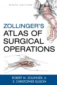 أطلس زولنجر الطبي في العمليات الجراحية